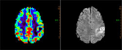 Figure 5. Dynamic susceptibility contrast T2* perfusion analysis demonstrates hyperperfusion with relative cerebral blood volume