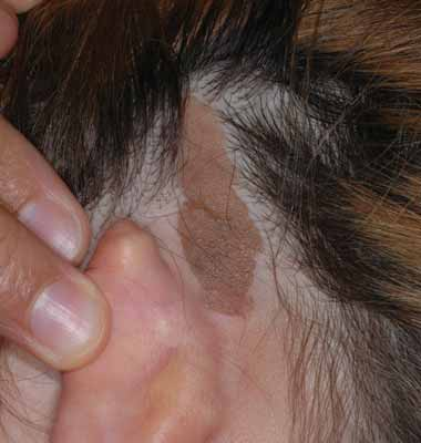 """The surface of the lesion has developed a """"bumpy"""" surface and greasy consistency over the past several months."""