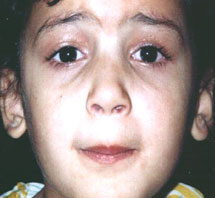 modified frontalis muscle flap advancement can correct pediatric