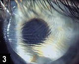 how to know if lasik flap is dislodged