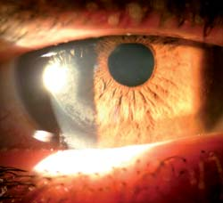 Epithelial Ingrowth After Lasik Can Be Treated Effectively