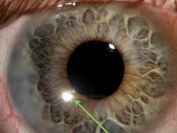 Perioperative Medications Can Be Beneficial In Cataract