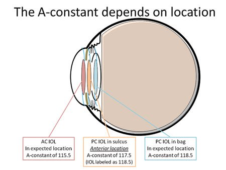 Refining the a constant yields more accurate refractive results the a constant of the iol depends on its location within the eye a ccuart Choice Image