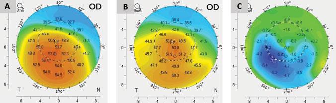 Axial curvature measurements