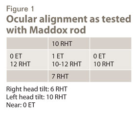 ocular alignment