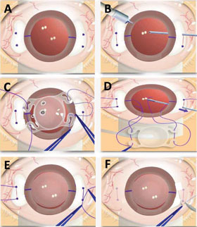 key steps of four-point scleral fixation