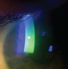 EBMD-negative corneal staining
