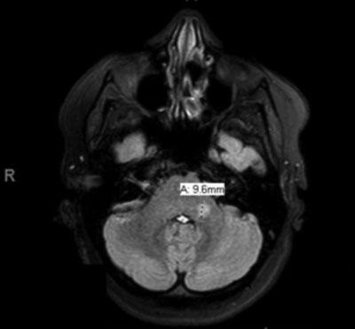 Brain MRI T2 axial FLAIR sequence showing enhancing lesion
