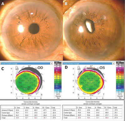 linical picture and corresponding corneal densitometry