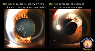prior cataract surgery was complicated