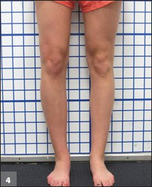 Valgus deformity and limb length discrepancy corrected