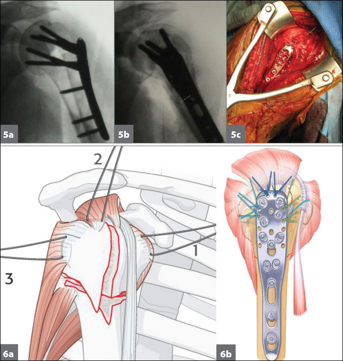 Orif Helps Achieve Stability Of Displaced Multipart Proximal Humerus