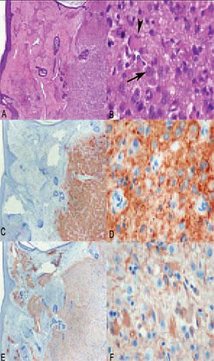 Figure 3. Histology of nasal glioma