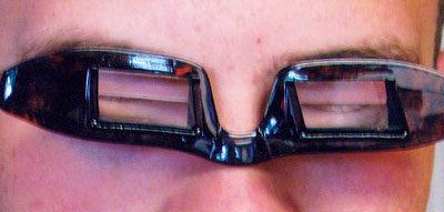 3c306c701781 Inversion prism lenses help ease patients  recovery from retinal surgery