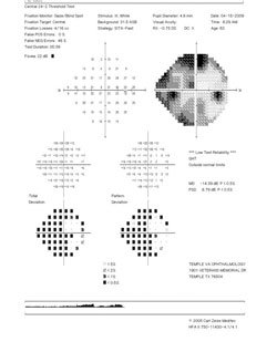 Visual field results.