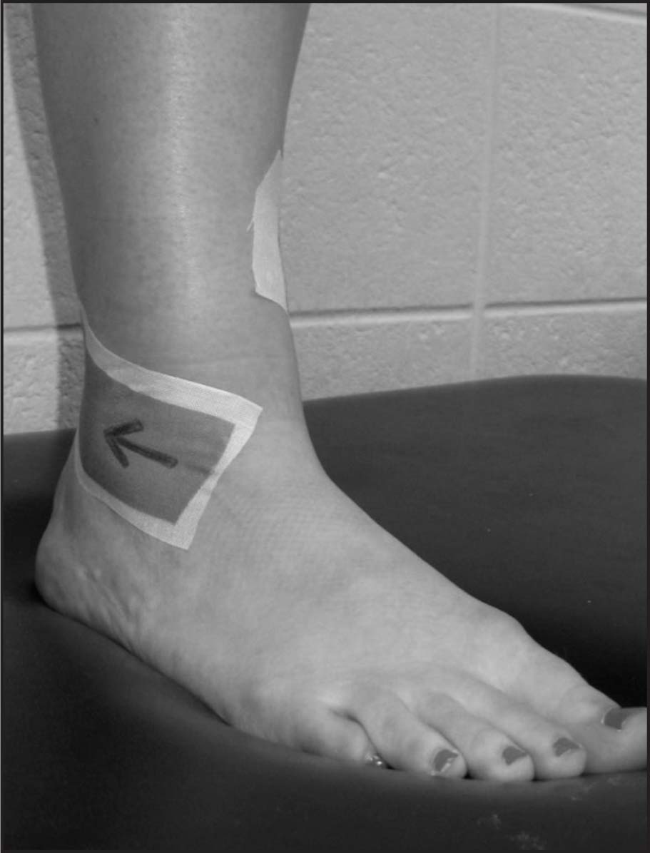 Fibular Repositioning Tape. The Arrow Indicates the Direction of the Posterolateral Force Used to Apply the Leukotape ((BSN Medical, Miramar, Fla).