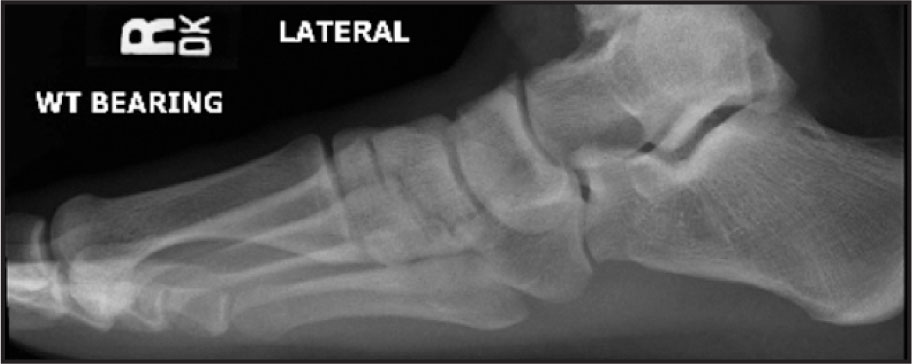 Right Foot Weight (WT) Bearing Lateral View, for Comparison with Figure 4. Note How the Fifth Metatarsal Is More Visible on This Foot Compared with the Left Foot in Figure 4.