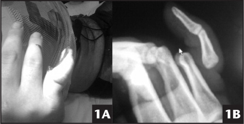 Initial Injury in the Hospital Emergency Department (A) and Radiograph of the Affected Hand Showing the Dislocated Phalanges (B).