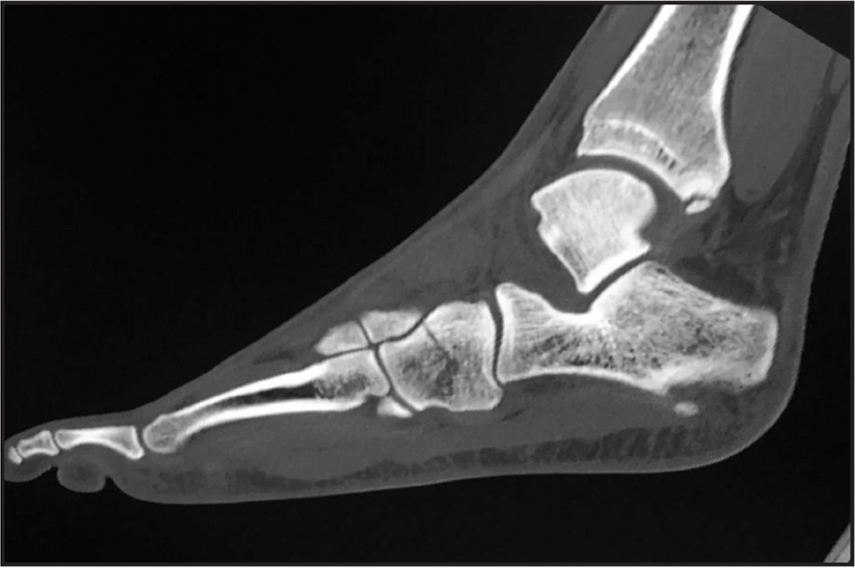 Sagittal computed tomography scan through the cuboid bone. There is an incidental finding of an old posterior malleolus fracture.