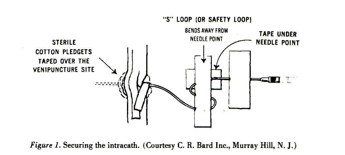 Figure 1. Securing the intracath. (Courtesy C. R. Bard Inc., Murray Hill, N. J.)