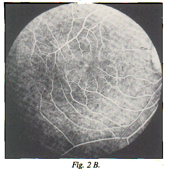 Fig. 2 B. In the arteriovenous phase, the macular fluorescence increases.