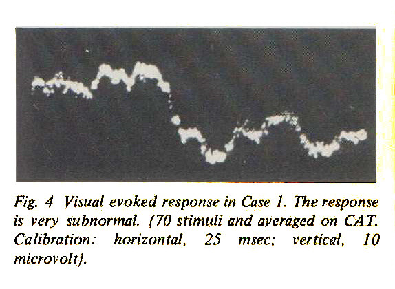 Fig. 4 Visual evoked response in Case I. The is very subnormal. (70 stimuli and averaged on CA Calibration: horizontal, 25 msec: vertical, microvolt).