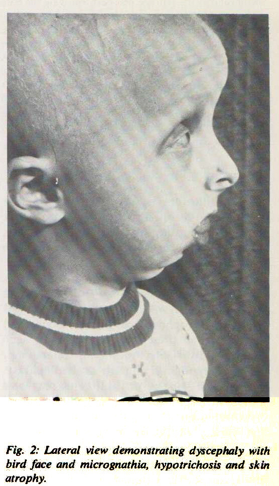 Fig. 2: Lateral view demonstrating dyscephaly with bird face and micrognathia, hypotrichosis and skin atrophy.