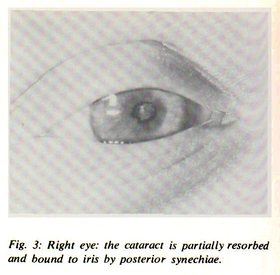 Fig. 3: Right eye: the cataract is partially resorbed and bound to iris by posterior synechiae.