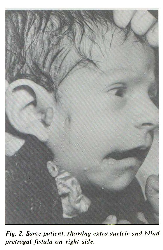 Fig. 2: Same patient, showing extra auricle and blind pretragal fistula on right side.