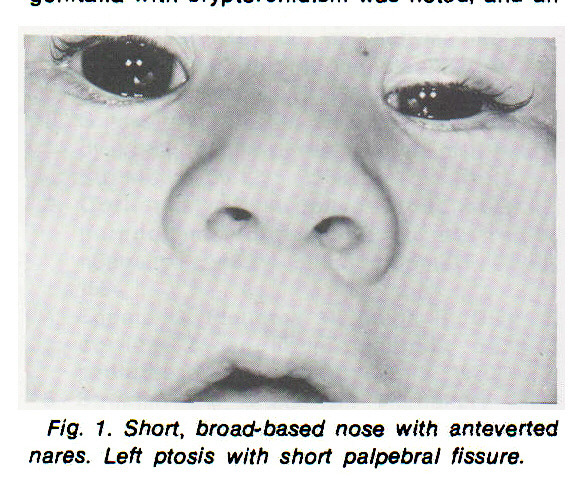 Fig. 1. Short, broad- based nose with anteverted nares. Left ptosis with short palpebral fissure.