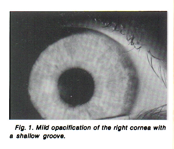 Fig. 1. Mild opacification of the right cornea with a shallow groove.