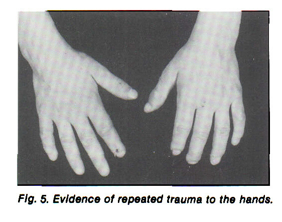 Fig. 5. Evidence of repeated trauma to the hands.