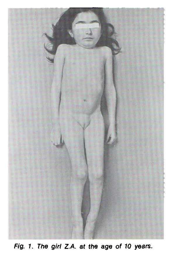 Fig. 1. The girl ZA. at the age of 10 years.