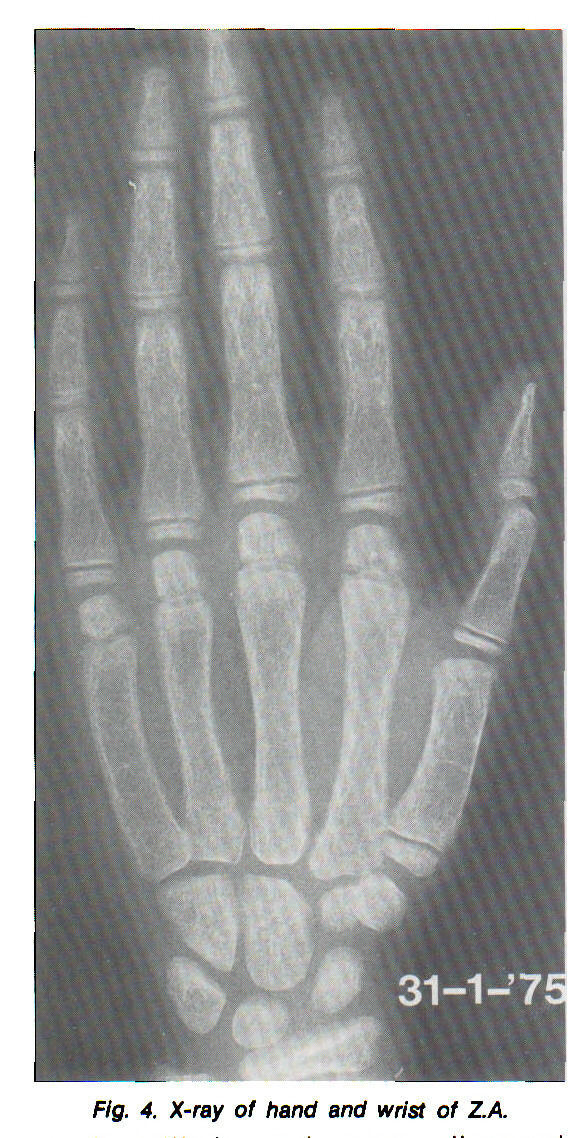 Fig. 4. X-ray of hand and wrist of Z.A.