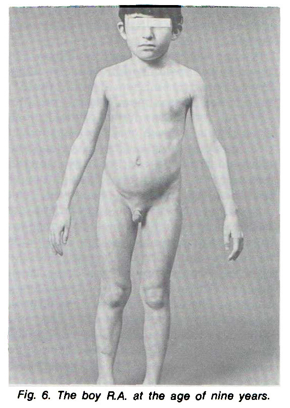 Fig. 6. The boy RA. at the age of nine years.