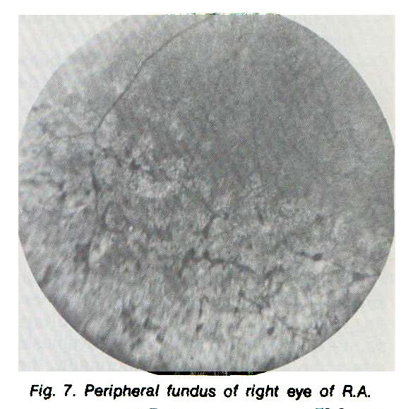 Fig. 7. Peripheral fundus of right eye of RA.