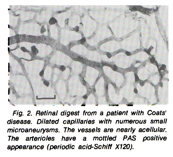 Fig. 2. Retinal digest from a patient with Coats' disease. Dilated capillaries with numerous small microaneurysms. The vessels are nearly acelluiar. The arterioles have a mottled PAS positive appearance (periodic acid-Schiff X120).