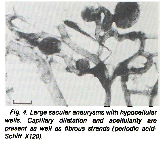 Fig. 4. Large sacular aneurysms with hypocellular walls. Capillary dilatation and acellularity are present as well as fibrous strands (periodic acidSchiff X120).