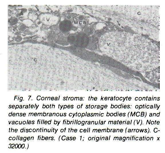 Fig. 7. Corneal stroma: the keratocyte contains separately both types of storage bodies: optically dense membranous cytoplasmic bodies (MCB) and vacuoles filled by fibrillogranular material (V). Note the discontinuity of the cell membrane (arrows). Ccollagen fibers. (Case 1; original magnification ? 32000.)