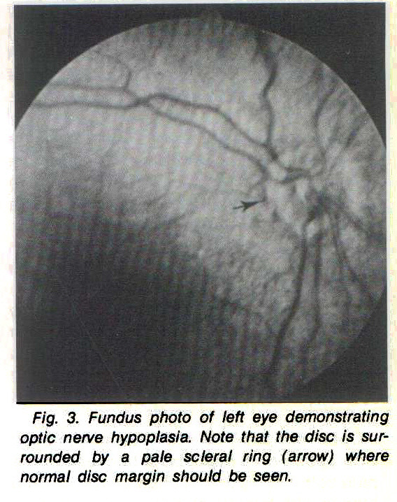 Fig. 3. Fundus photo of left eye demonstrating optic nerve hypoplasia. Note that the disc is surrounded by a pale scleral ring (arrow) where normal disc margin should be seen.