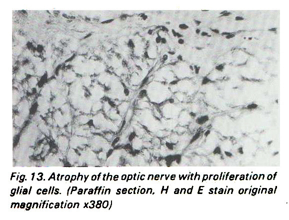 Fig. 13. Atrophy of the optic nerve with proliferation of glial cells. (Paraffin section, H and E stain original magnification x380)