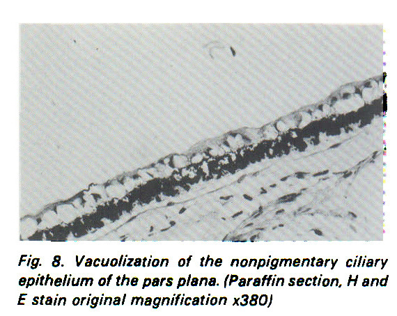Fig. 8. Vacuolization of the nonpigmentari ciliary epithelium of the pars plana. (Paraffin section. H and E stain original magnification x380)