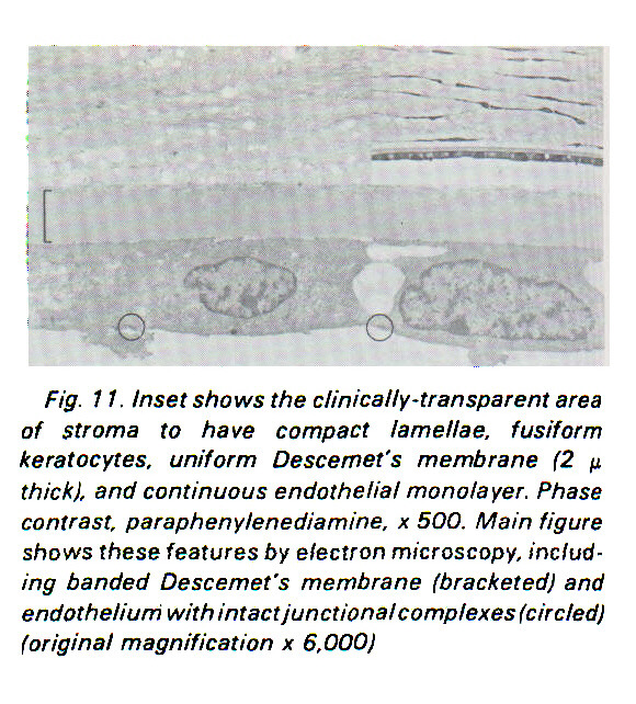 Fig. 11. Inset shows the clinically-transparent area of stroma to have compact lamellae, fusiform keratocytes, uniform Descemet's membrane (2 µ thick), and continuous endothelial monolayer. Phase contrast, paraphenylenediamine, ? 500. Main figure shows these features by electron microscopy, including banded Descemet's membrane (bracketed) and endothelium with intact junctional complexes (circled) (original magnification x 6,000)