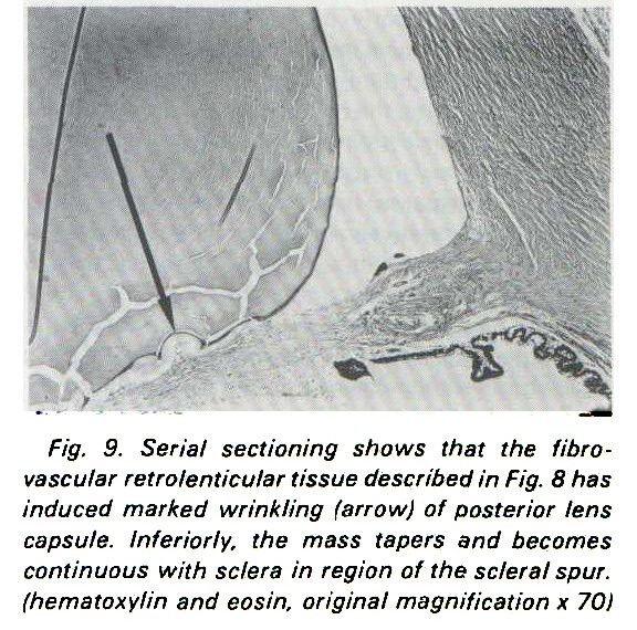 Fig. 9. Serial sectioning shows that the fibrovascular retrolenticular tissue described in Fig. 8 has induced marked wrinkling (arrow) of posterior lens capsule. Inferiorly, the mass tapers and becomes continuous with sclera in region of the scleral spur, (hematoxylin and eosin, original magnification x 70)