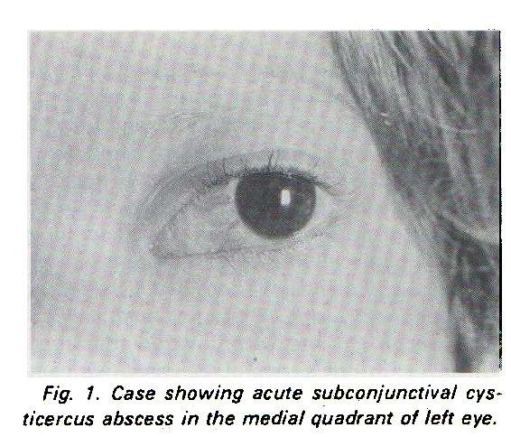 Fig. 1. Case showing acute subconjunctival Cysticercus abscess in the media/ quadrant of left eye.