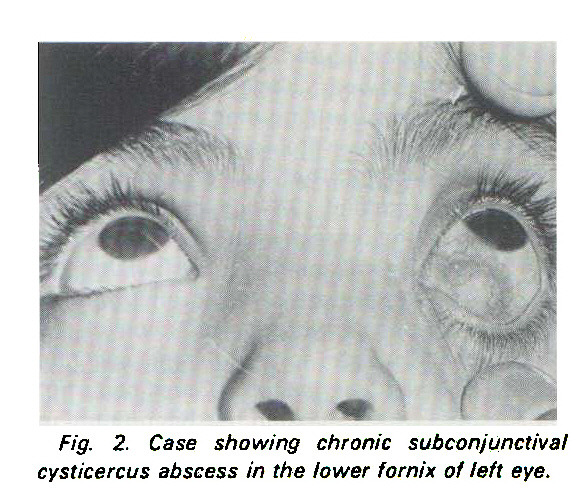 Fig. 2. Case showing chronic subconjunctival Cysticercus abscess in the lower fornix of left eye.