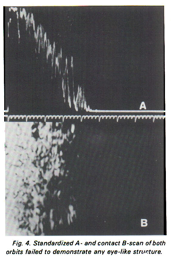 Fig. 4. Standardized A- and contact ? -scan of both orbits failed to demonstrate any eye-like structure.