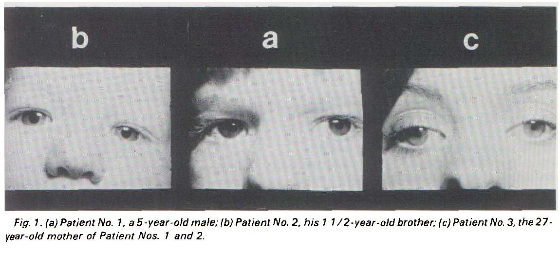 Fig. 1. 1a) Patient No. ha S-year-old maie; !b) Patient No. 2. his 1 1 /2-year-old brother; (c) Patient No. 3, the 27-year-old mother of Patient Nos. 1 and 2.