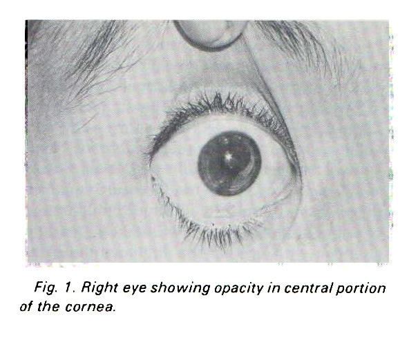 Fig. 1. Right eye showing opacity in central portion of the cornea.
