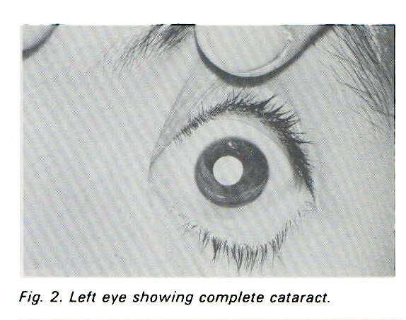 Fig. 2. Left eye showing complete cataract.
